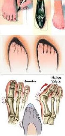 Saúde dos pés 1
